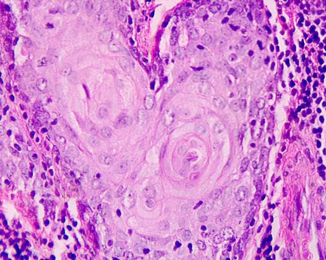 Tumore alla prostata, in arrivo nuove cure che aumentano la prospettiva di vita