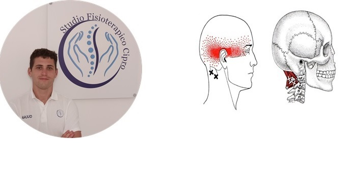 Cefalea: un aiuto dalla fisioterapia. Intervista al Dott. Giulio Pancani